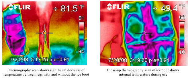 Thermography scan shows significant devrease of temperature between legs with and without the ice boot. Close up thermography scan of ice boot shows internal temperature during use.